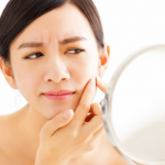 5 Ways to get rid of Acne